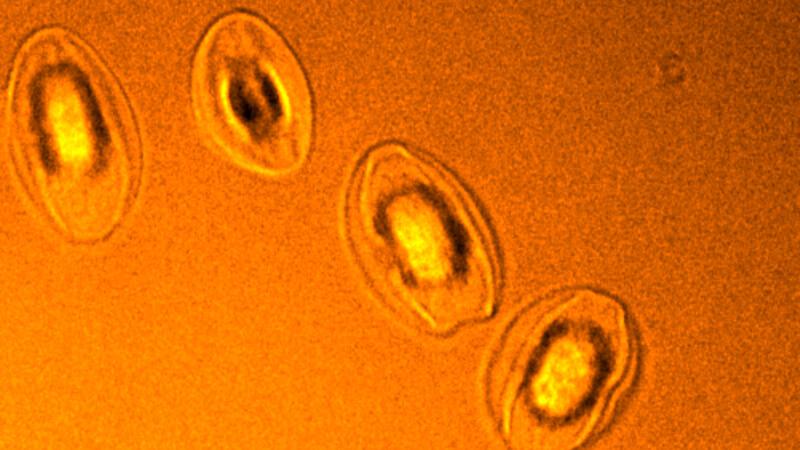 Микроскопия: Confotec CARS
