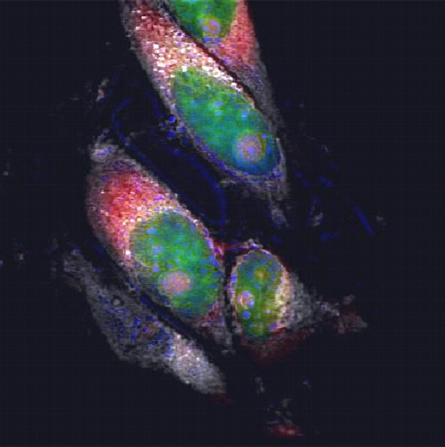 Multimodal CARS/TPEF image of growing cancer cells